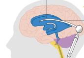 Υδροκέφαλος (υδροκεφαλία)