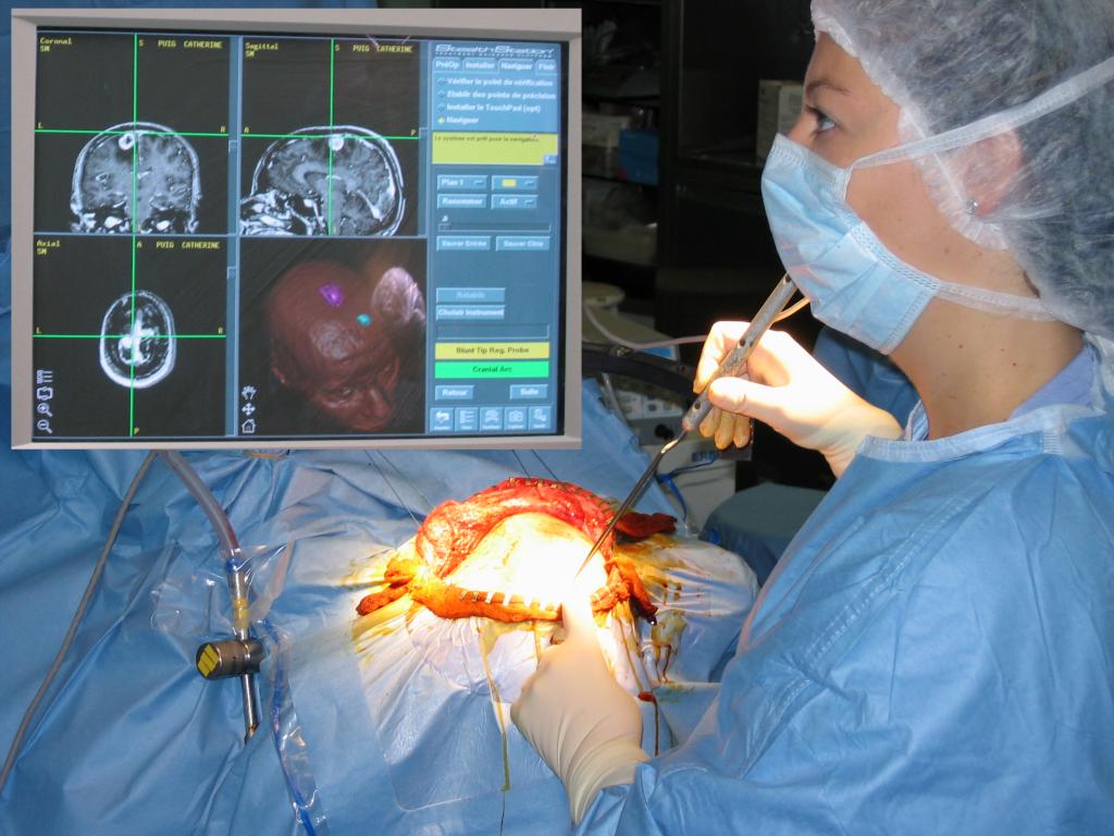 Η νευροπλοήγηση ρομποτική νευροχειρουργική (neuronavigation).
