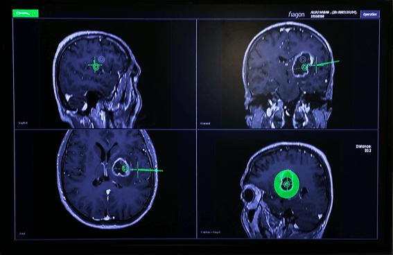 Η στερεοτακτική βιοψία (CRW stereotactic frame biopsy)