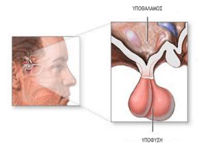 Το αδένωμα υπόφυσης (pituitary gland) είναι συνήθως καλοήθης όγκος που αναπτύσσεται στον αδένα της υπόφυσης.