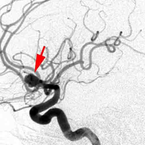 Αγγειακές δυσπλασίες. Ανεύρυσμα εγκεφάλου. Ανευρύσματα εγκεφάλου. Initial angiogram