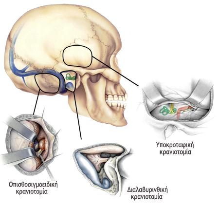 Three types of craniotomy.
