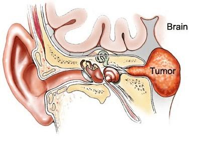 Το ακουστικό νευρίνωμα (αιθουσαίο σβάννωμα, acoustic neuroma)
