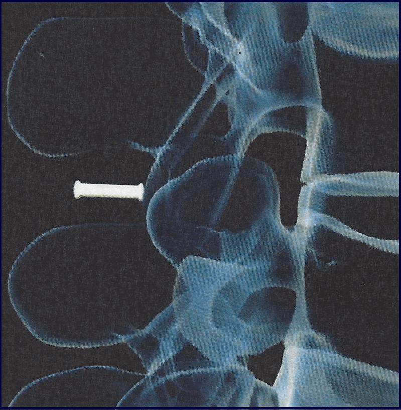 Δυναμική οσφυική σπονδυλοδεσία σταθεροποίηση με μεσακάνθιο πρόθεμα για οπίσθια δυναμική σταθεροποίηση. Ακτινοσκοπική επιβεβαίωση τοποθέτησης (Back Jack Confirmation)